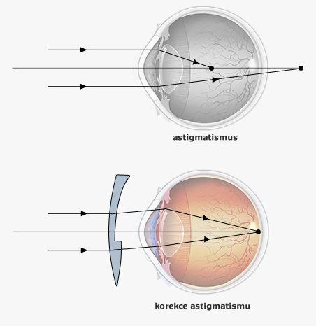 astigmatismus_4d8c710de7df8.jpg